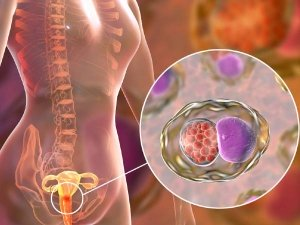 Signs Of Cervical Cancer That Women Must Not Ignore