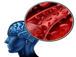 Lifestyle Habits That Increase Your Risk Of A Brain Stroke In Telugu