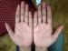రెండు చేతులు కలిపినప్పుడు అర్ధచంద్రాకారం ఏర్పడితే ఏమవుతుంది ?